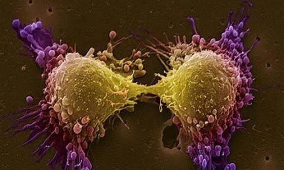 Υποσχόμενη ανοσοθεραπεία για τον καρκίνο