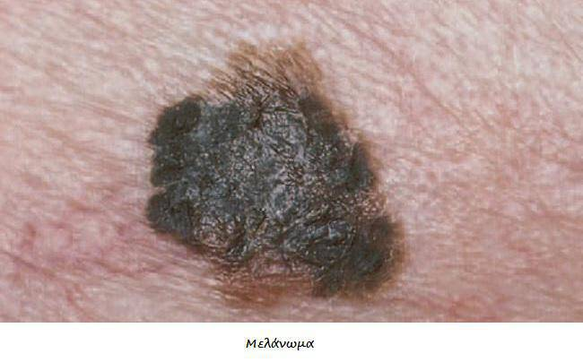 Καρκίνος του δέρματος: 20 φωτογραφίες που σώζουν ζωές