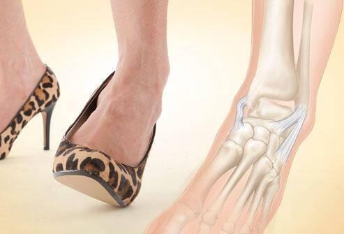 Δείτε μέσα από εικόνες τι κάνουν τα ψηλά τακούνια στα πόδια σας