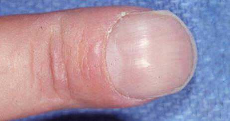 Πέντε ύπουλα προβλήματα υγείας που φαίνονται στα νύχια (εικόνες)