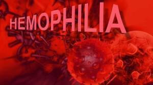 aimorrofilia-b-666x399