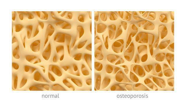Οστεοπόρωση: Ο ρόλος της φαρμακευτικής αγωγής και πότε μπορεί να διακοπεί