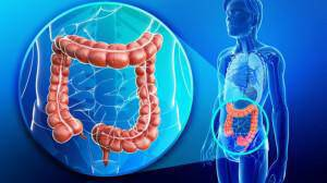 colon-colorectal-cancer-666x399