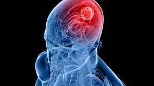 Brain-tumor-astrocytoma-orizontia