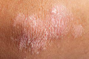 bigstock-Psoriasis-On-Elbow-Skin-65113735