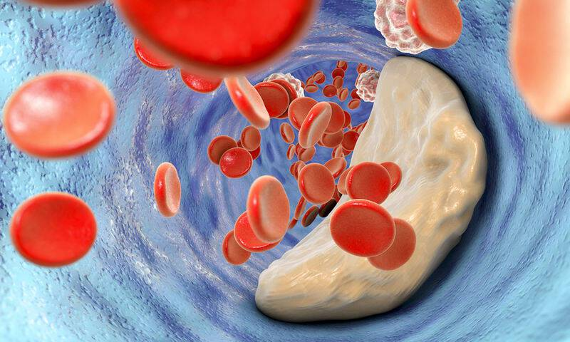 bigstock-Atheroma-Plaque-Inside-Artery-144294644