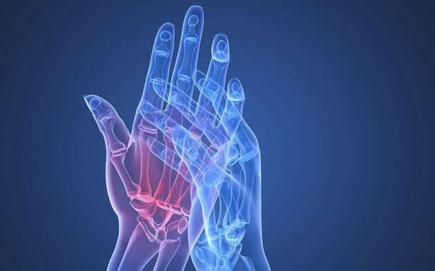 Θεραπεία ασθενών με εξελισσόμενη ρευματοειδή αρθρίτιδα