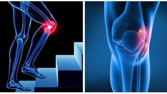 Τι φανερώνει ο πόνος στο γόνατο όταν ανεβαίνετε σκάλες!